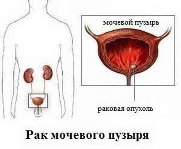 Что такое рак мочевого пузыря