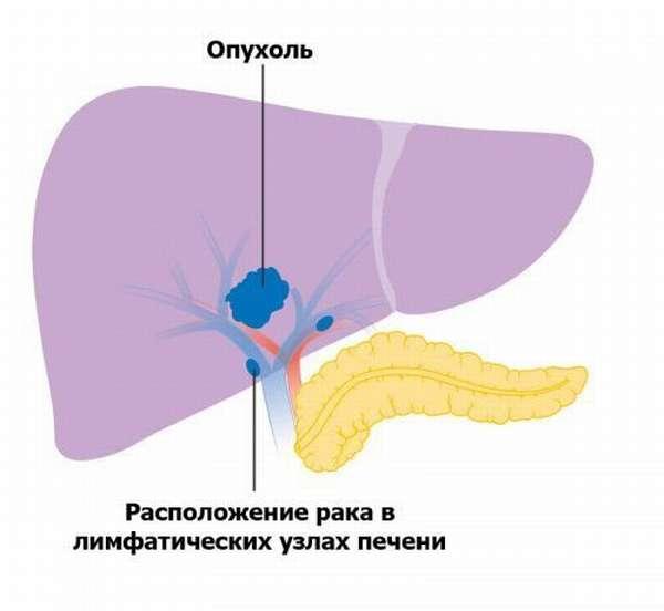 Раковая опухоль печени