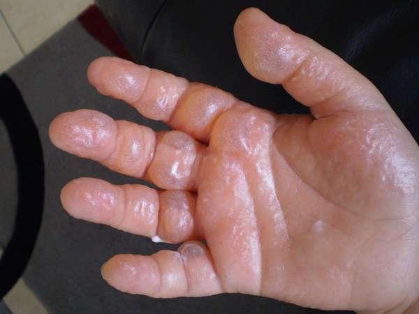 Возможное проявление аллергии