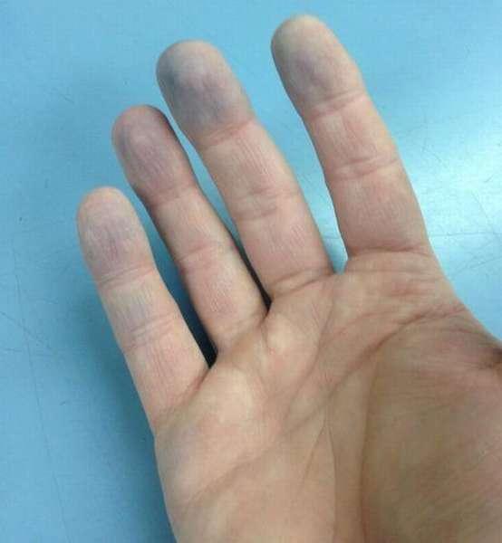 Синие пальцы