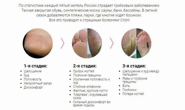 О грибковом заболевании