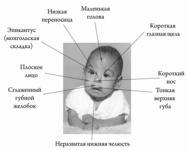 Симптомы ФАС у ребенка