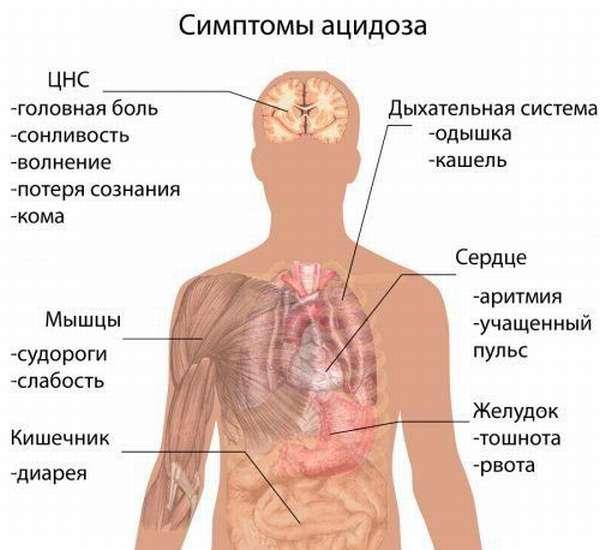 Симптомы ацидоза