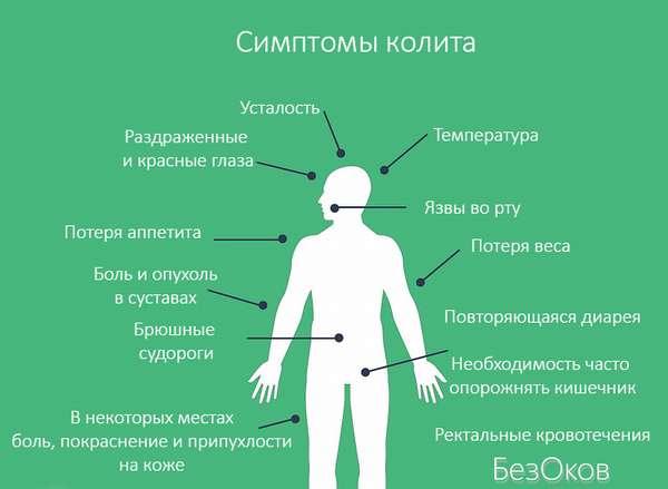 Симптомы колита