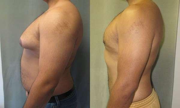 Увеличение груди у мужчин