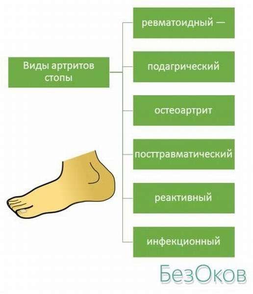 Виды артритов стопы