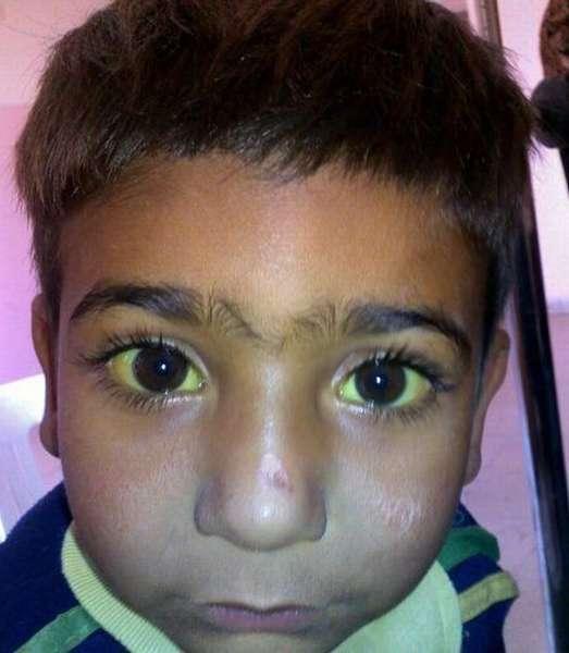 Ребенок больной гепатитом